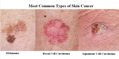 skin cancer and expert knowledge Skin cancer actinic  nashville skin maintain the highest levels of accreditation and pursue ongoing education to stay abreast of the latest knowledge in.