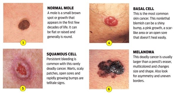 Skin Cancer Know The Facts Aspire Hospital