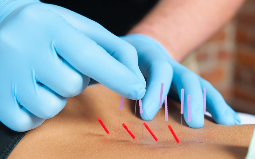 Major Indicators Of The Need Of Dry Needling